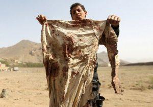 saudi invasion in yemen1