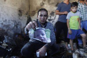 Palestinian kid burned to death